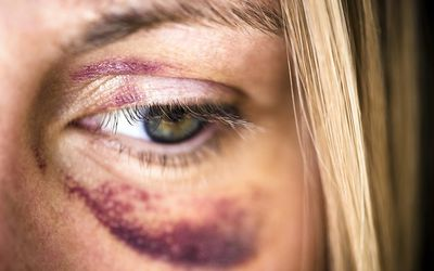 Criminal Injury Compensation Guide For Victims
