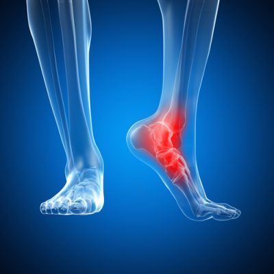 Foot Injury Compensation Claims