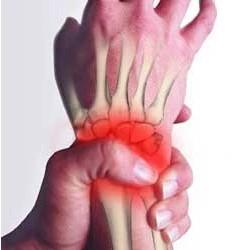 Wrist Amputation Claims