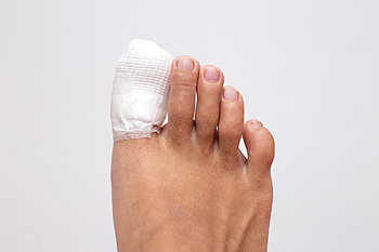 Toe Injury Claim